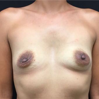 35-44 year old woman treated with Breast Augmentation before 3493899