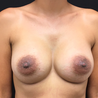 35-44 year old woman treated with Breast Augmentation after 3493899
