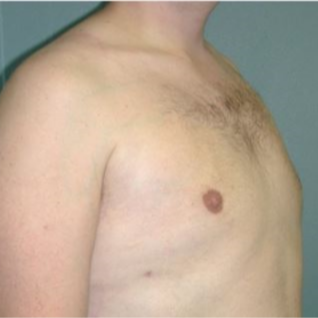 35-44 year old man treated with Male Breast Reduction after 3239627