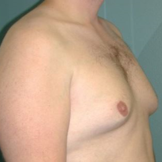 35-44 year old man treated with Male Breast Reduction before 3239627