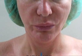 Necktite neck liposuction with skin retraction before 3035882