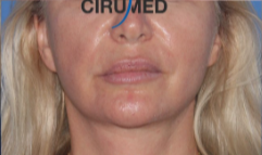 Necktite neck liposuction with skin retraction after 3035882