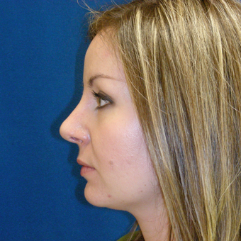 25-34 year old woman treated with Rhinoplasty after 3691890