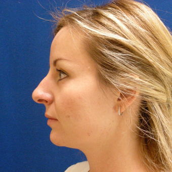 25-34 year old woman treated with Rhinoplasty before 3691890