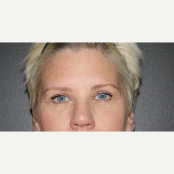 45-54 year old woman treated with Upper Eyelid Surgery after 3028015