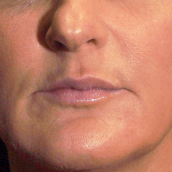 45-54 year old woman treated with Lip Augmentation after 3202045
