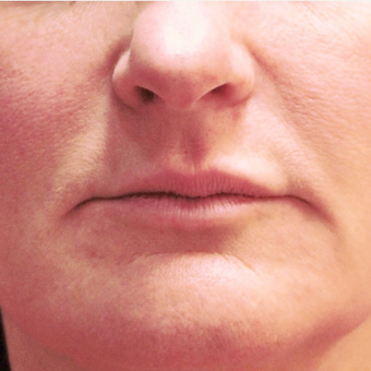 45-54 year old woman treated with Lip Augmentation before 3202045