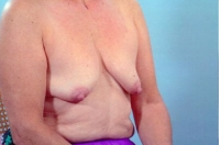 Breast Augmentation before 3446186
