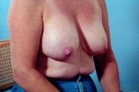 Breast Augmentation after 3446186