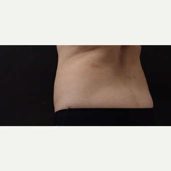 55 year old woman treated with CoolSculpting before 3220716