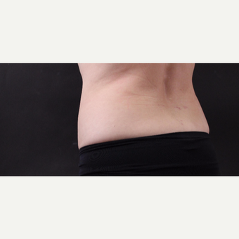 55 year old woman treated with CoolSculpting after 3220716