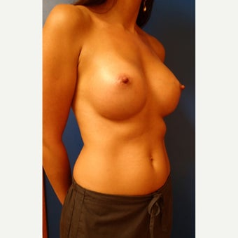 25-34 year old woman treated with Breast Implants after 2213394