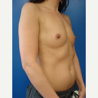 25-34 year old woman treated with Breast Implants before 2213394