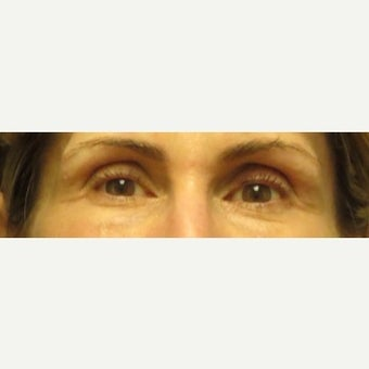 Volume Loss In Eye Temples/Temporal Hallows Restored With Juvederm Voluma before 2045376