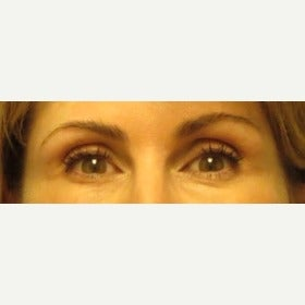 Volume Loss In Eye Temples/Temporal Hallows Restored With Juvederm Voluma after 2045376