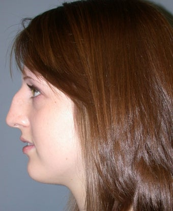 18-24 year old woman treated with Rhinoplasty before 3710447