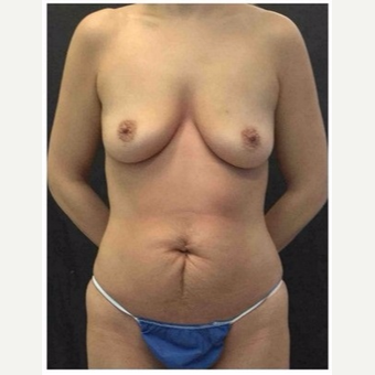 45-54 year old woman treated with Mommy Makeover before 3046405