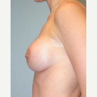 33 year old IMF incision.  375 cc HP silicone.  Bra size A to small C. after 3292121