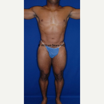 35-44 year old man treated with Liposuction after 3771401