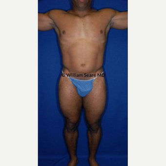 35-44 year old man treated with Liposuction before 3771401