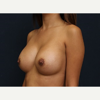 18-24 year old woman treated with Breast Augmentation after 3344113