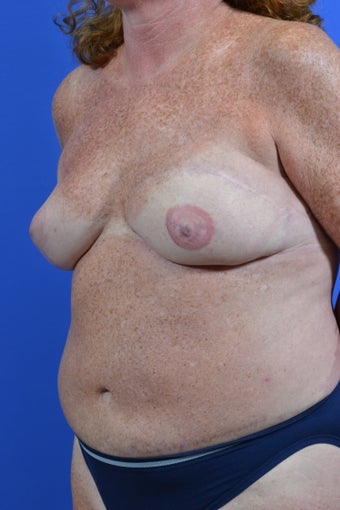 TRAM flap breast reconstruction after 1214879