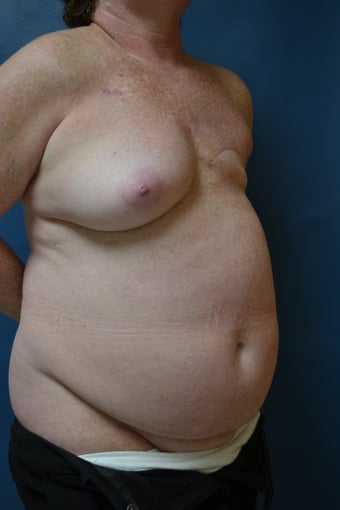 TRAM flap breast reconstruction 1214879