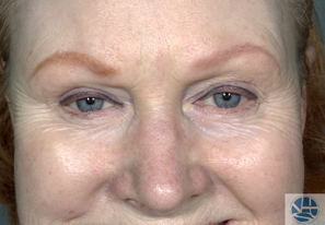 Laser Resurfacing before 1177711