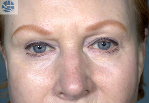 Laser Resurfacing after 1177711