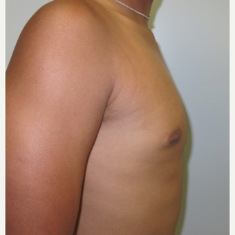 17 or under year old man treated with Male Breast Reduction after 3516434
