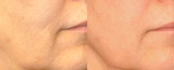 Skin rejuvenation with Sublative and ePrime combination treatment before 1098905