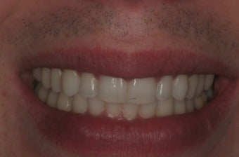 35-44 year old man treated with Invisalign after 3241525