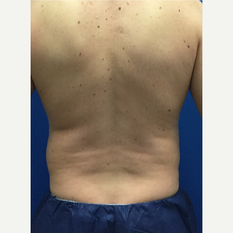 Male patient treated with Liposculpture before 3071899