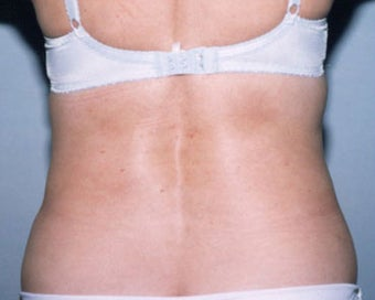 SmartLipo  after 876521