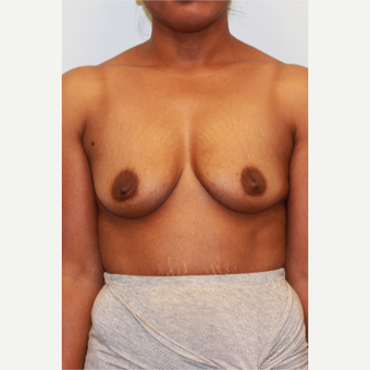 25-34 year old woman treated with Breast Augmentation before 3162980