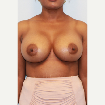 25-34 year old woman treated with Breast Augmentation after 3162980