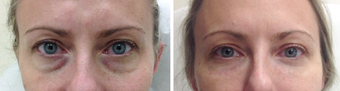 Woman Treated Non-Surgically for Undereye Bags before 1360030