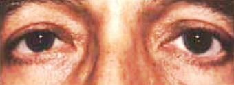 Eyelid Surgery after 1596307