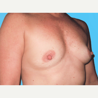 Breast Augmentation before 3732681