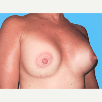 Breast Augmentation after 3732681