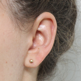 Ear Lobe Repair and Re-Piercing after 3310701