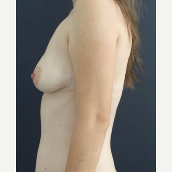 25-34 year old woman treated with Breast Augmentation before 3826477