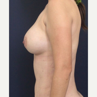 25-34 year old woman treated with Breast Augmentation after 3826477