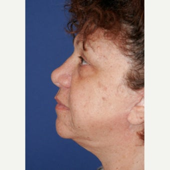 55-64 year old woman treated with Neck Lift 1862263