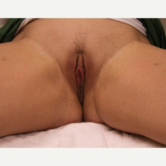 25-34 year old woman treated with Labiaplasty after 1909994
