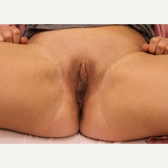 25-34 year old woman treated with Labiaplasty before 1909994