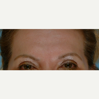 55-64 year old woman treated with Botox after 3488364
