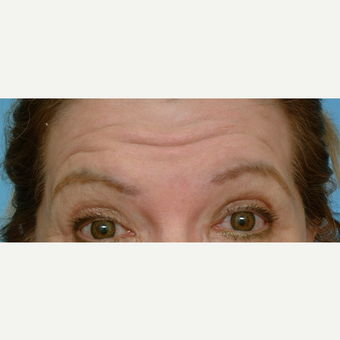 55-64 year old woman treated with Botox before 3488364