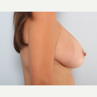 Breast Augmentation after 3459989