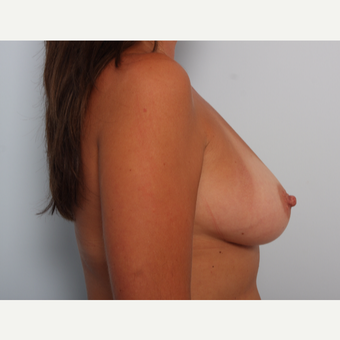 Breast Augmentation before 3459989